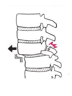 腰椎すべり・分離症.jpg
