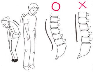 屈曲型腰痛